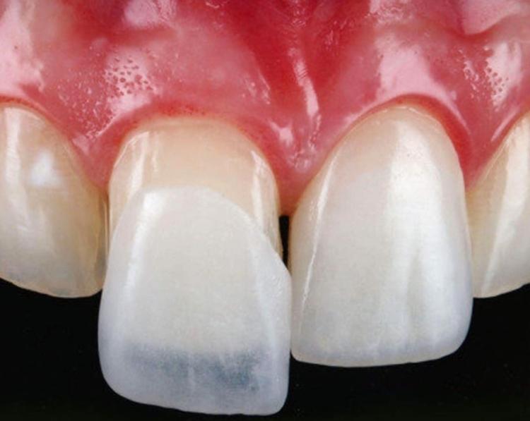 Грамотный выбор зубных протезов: какие из них самые лучшие и удобные?