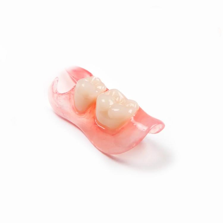 Что лучше — имплантация зубов или съемный протез? Преимущества и недостатки