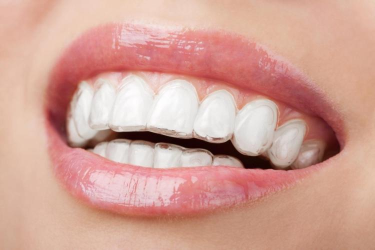 Для чего нужно выравнивать зубы? Можно ли их выпрямить без брекетов и как это сделать?