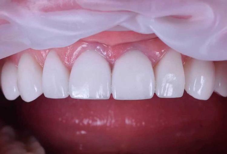 Как улучшить улыбку: что такое виниры для зубов, как они ставятся?