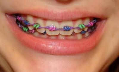 Красивая улыбка с детства: когда ставить брекеты ребенку и какие виды изделия лучше?