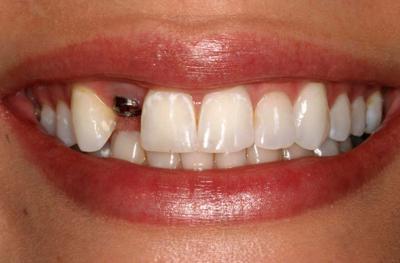 Установка имплантов после удаления зуба. Через какое время можно ставить?