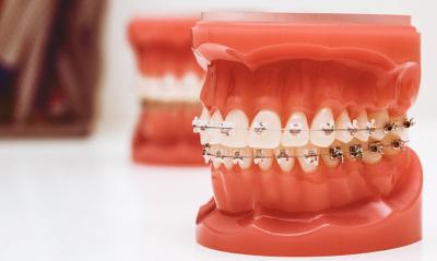 Кто такой ортодонт в стоматологии? Методы и этапы лечения