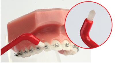 Можно ли чистить брекеты зубной щеткой и как правильно ухаживать за полостью рта?