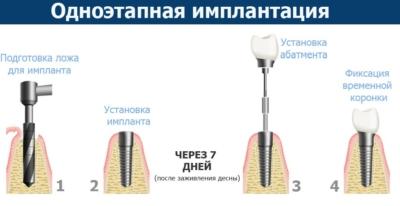 Виды зубных имплантов и способы их крепления. Какие лучше ставить?