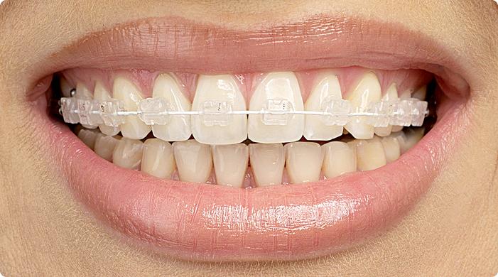 Как сделать улыбку идеальной: какие бывают брекеты и что лучше выбрать? Советы