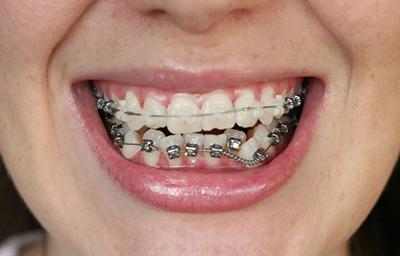 Секреты стоматологов. Что делают брекеты с зубами и как устроена данная система?