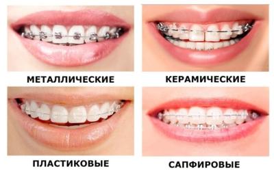Как действуют и из чего состоят брекеты для зубов? Что выбрать: виды и характеристика систем