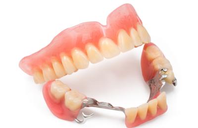 Бюгельный протез зубов — что это? Как выглядит и в чем его преимущества?
