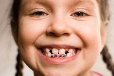 Брекеты или пластины: что лучше для правильного прикуса у детей?