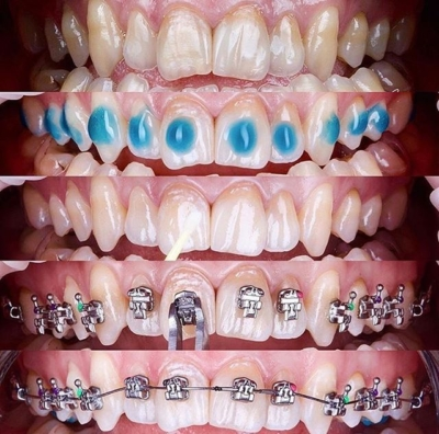 Болят зубы после установки брекетов: как долго терпеть и что делать?
