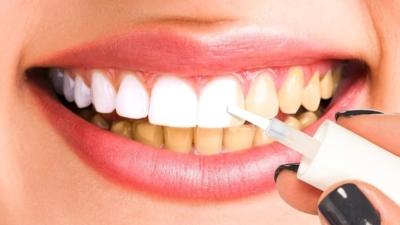 Что происходит при отбеливании зубов? Как это делается в стоматологии и дома?