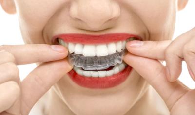 Зачем нужны ретейнеры и зубные капы и что делать после снятия брекетов?