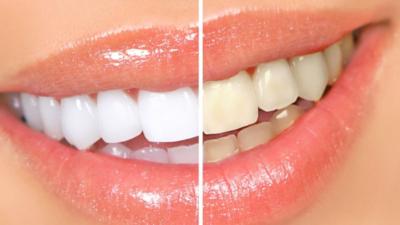 Профессиональное отбеливание или чистка зубов: что лучше выбрать и почему?