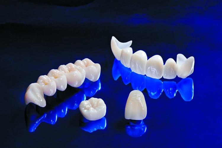 Как спасти жевательные зубы? Какие коронки лучше: керамические или циркониевые?