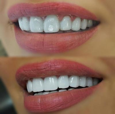 Секреты красивой улыбки. Как устанавливают виниры на зубы — пошаговая инструкция
