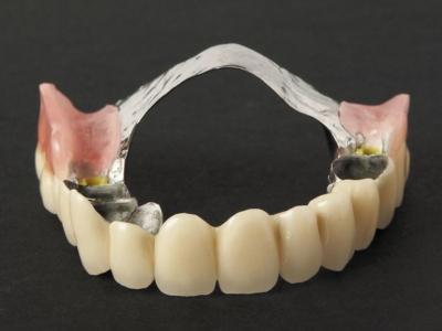 Съемные зубные протезы: как носить и нужно ли снимать их на ночь?