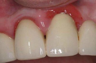 Что делать, если под коронкой зуба появилось воспаление? Причины и лечение