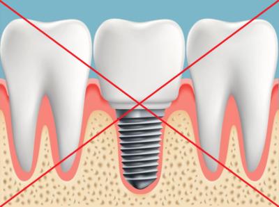 Правильная подготовка — залог успеха! Что нужно для имплантации зубов?