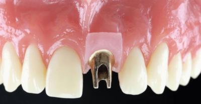 Эстетика верхней челюсти. Как ставят импланты зубов и какие сложности бывают?