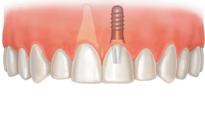 Шаги к улыбке. Какие импланты лучше ставить на передние зубы верхней челюсти?