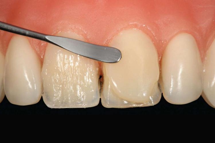 Разнообразие виниров и сроки их службы. Сколько держатся на зубах?