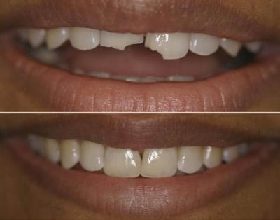 Трудности выбора: что лучше, коронка или наращивание зуба?