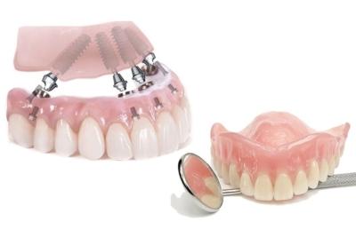 Голливудская улыбка: как быть человеку, если у него нет зубов и какие протезы лучше ставить?