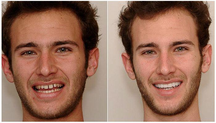 Преображение лица без операции. Как меняется внешность после брекетов?