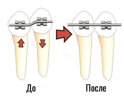 Решение ортодонтических проблем. Чем отличаются скобы от брекетов и что лучше?