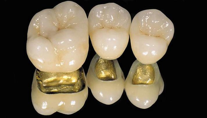 Преимущества и виды золотых коронок. Как отделить от зубов и почистить изделие?