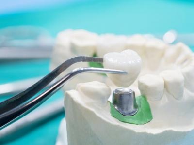 Подробно о видах коронок. Какие лучше поставить на жевательные зубы?