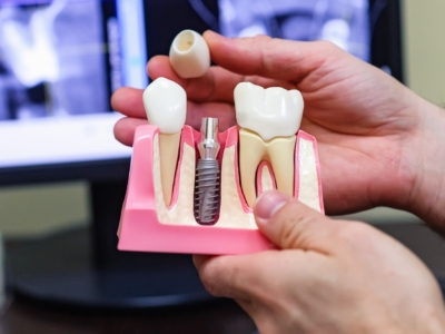 Все этапы возвращения утраченного: как устанавливают импланты зубов?