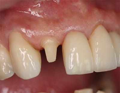 Подготовка зубов под коронку. Как обтачивают и больно ли это?